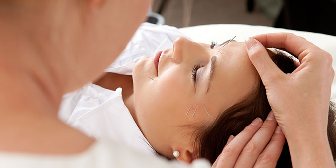 Acupuncture Treatment Grimsby Ontario