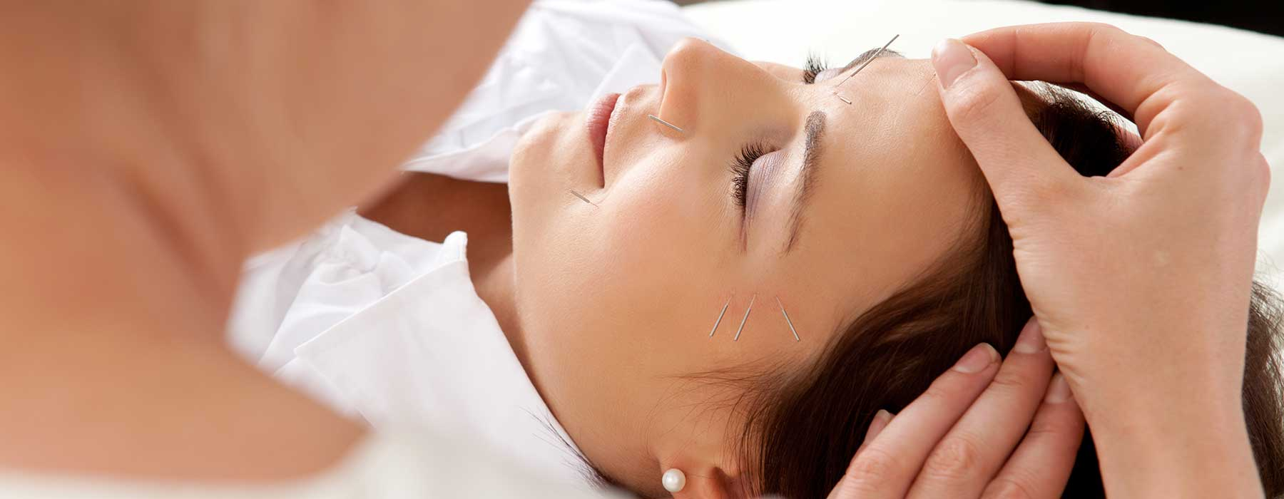 Free Acupuncture Treatment
